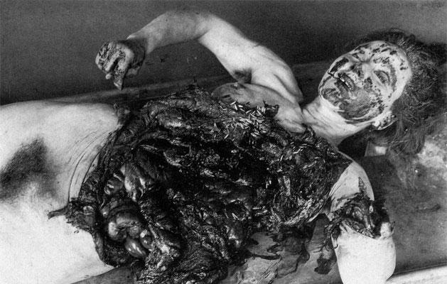 Los científicos japoneses realizaron pruebas sobre los prisioneros centrándose en torno a la peste bubónica, cólera, viruela, botulismo y otras enfermedades.