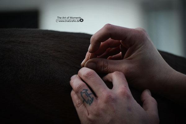 "Akupunktur regt das Qi an und unterstützt das Immunsystem - Foto ""The Art of Moments"""