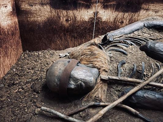 Bei ihm handelte es sich um einen etwa 15 bis 17 Jahre alten Jungen. Er lebte eindeutig in der Zeit zwischen 41 vor und 118 nach Christi und starb an einer schweren Zahninfektion am Unterkiefer.