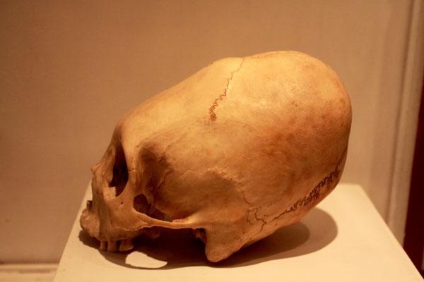 Besonders viele deformierte Schädel fand man in Mittel- und Südamerika in Gräbern der Maya, der Inka oder anderer Andenvölker. Ein deformierter Kopf galt vermutlich auch hier als schön und adelig.