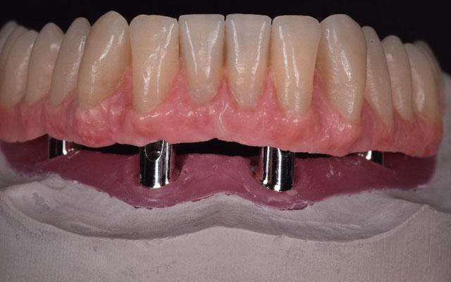 © Dentalteam Goller Postbauer-Heng Thema: Implantologie (Bild 7)