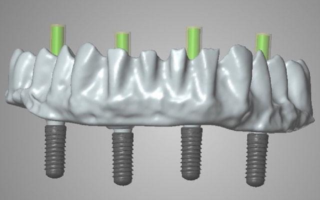 © Dentalteam Goller Postbauer-Heng Thema: Implantologie (Bild 2)