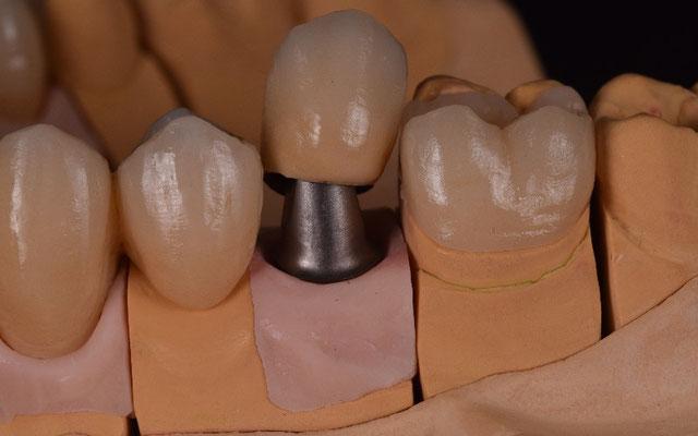 © Dentalteam Goller Postbauer-Heng Thema: Implantologie (Bild 4)
