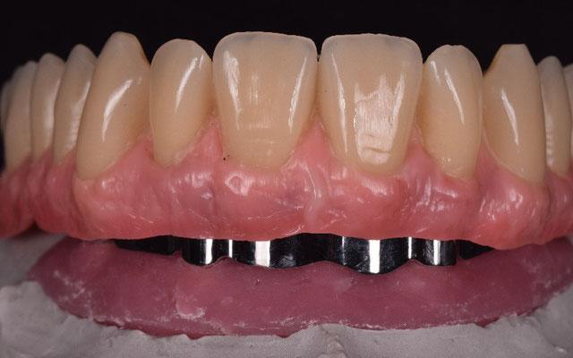 © Dentalteam Goller Postbauer-Heng Thema: Implantologie (Bild 8)