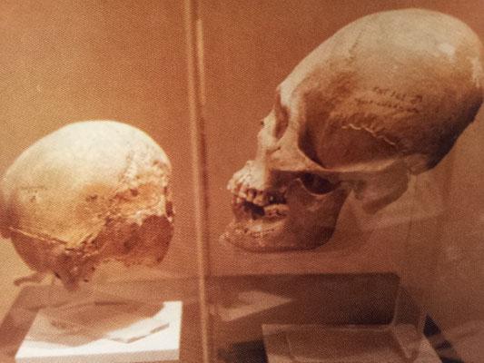 craneos olmecas alagardos, Museo Nacional de Antropología, D.F.