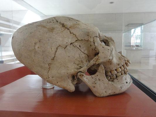 cráneo con deformación craneana (900-1500 d.C.), Museo de Antropología Xalapa
