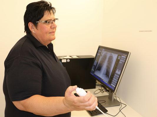 Digitales Lungen-Röntgen