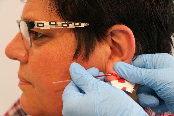 Untersuchung des Sauerstoffgehalts im Blut (Blutgase)