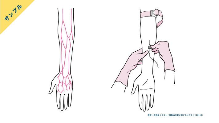 前腕の静脈血管の走行・静脈内注射の手技(2色刷)