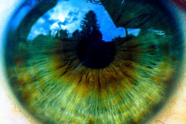 Auge / Iris