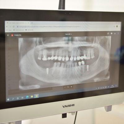 Dental_Studio_Przno_Budva_Montenegro_Pacient-3