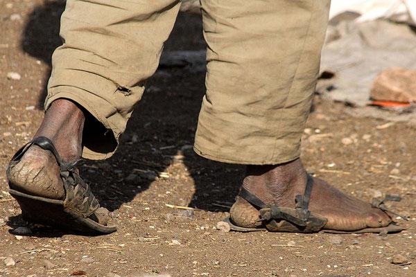 Geschundene Füße.