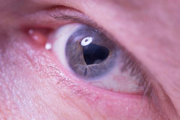 Schere im Auge