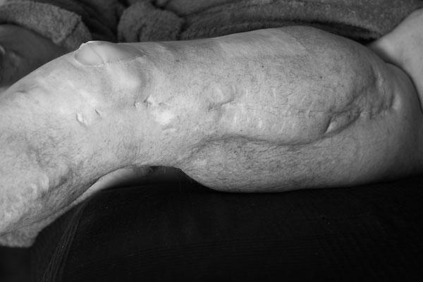 Amputation des linken Unterschenkels nach einem Motorradunfalls