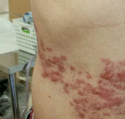 入院しなさいと言われた頃には、お薬を飲んでいたにもかかわらず、こんなふうに水疱瘡のような状態に。