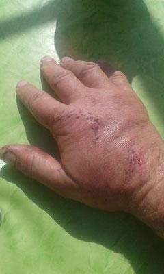 Rechte Männerhand direkt nach der OP