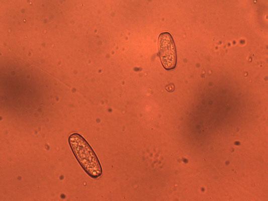 Sarcoscypha austriaca - Krulhaarkelkzwam