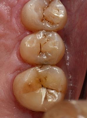 症例2と同じ患者さんの第二小臼歯遠心面