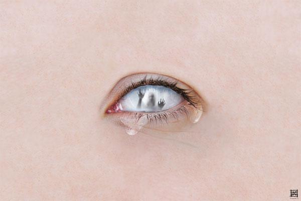 Gloom (eye)