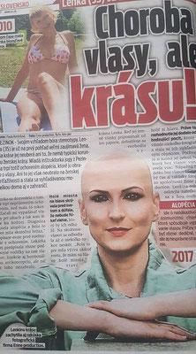 https://www.cas.sk/fotogaleria/577190/lenka-sa-stala-vyhladavanou-modelkou-choroba-jej-vzala-vlasy-ale-nie-krasu/2/