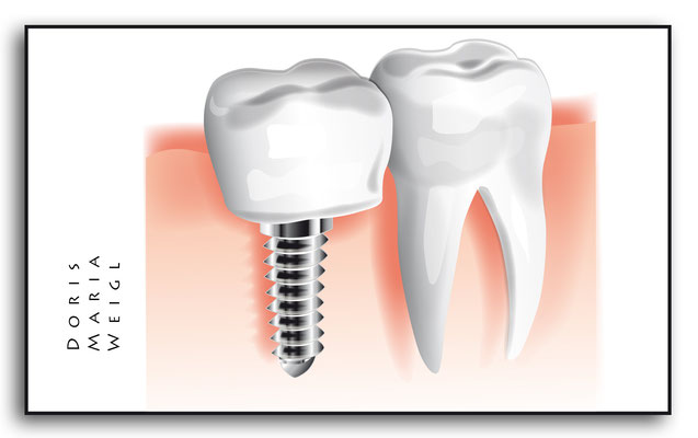 Zahnimplantat - Vektorgrafik - Illustrationen Doris Maria Weigl / Medizin