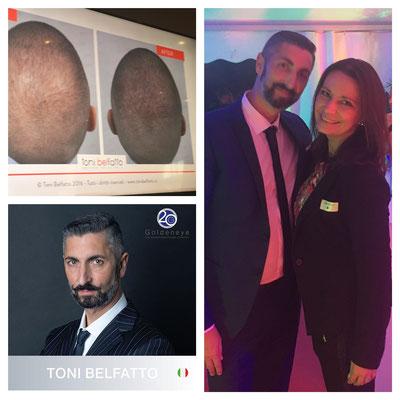 Kopfhautpigmentierung Toni Belfatto + Angela Schmoll