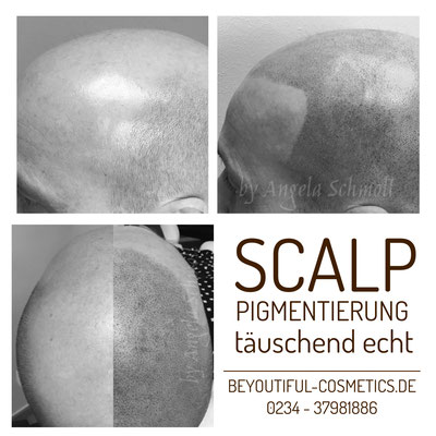Gegenüberstellung von pigmentierter + unpigmentierter/kahler Kopfhaut bei einem Mann.