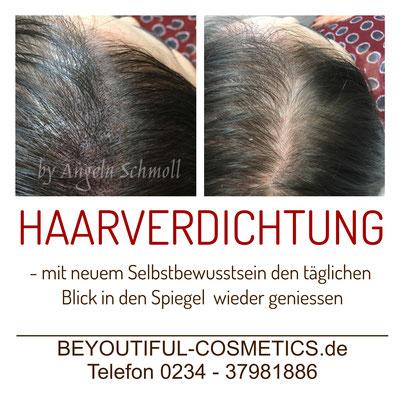 Abgebildet ist eine Haarverdichtung im Bereich des Scheitels bei einer Frau.