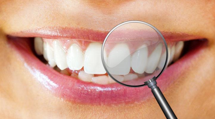 Saubere Zähne bis in die letzte Ecke