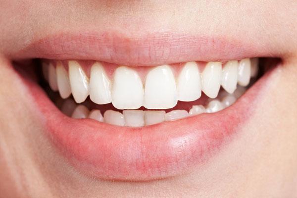 Kleine Schäden an den Zähnen mit Veneers korrigieren
