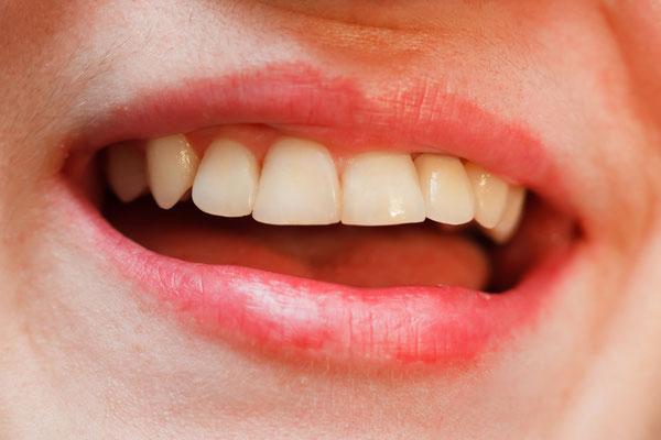 Reparatur von abgebrochenen Zähnen