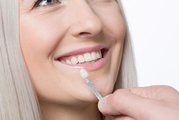 Farblich und optisch nicht von eigenen Zähnen zu unterscheiden