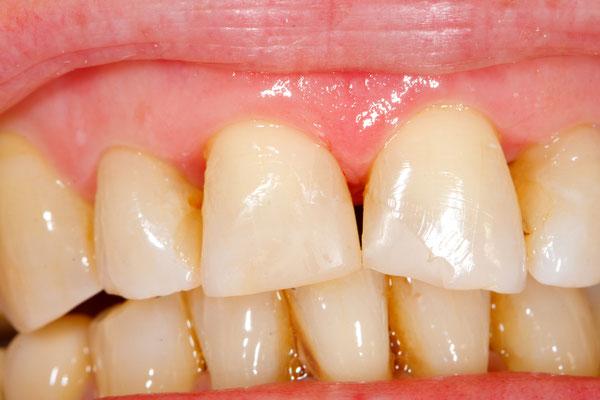 Reparatur von abgeknirschten Zähnen