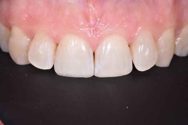 ricostruzioni estetiche bianche dei denti