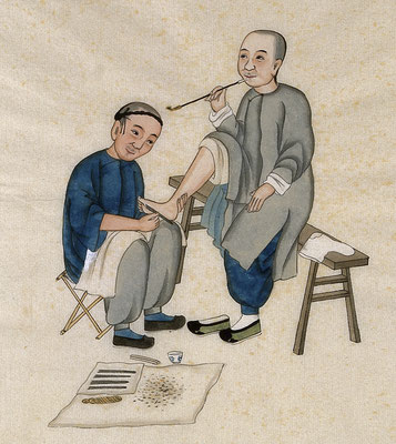 A practitioner of foot care and reflexology Zhou, Pei Qun, active approximately 1890.