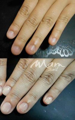 富士市ネイルサロン深爪矯正専門MamNail,深爪富士市,深爪矯正,