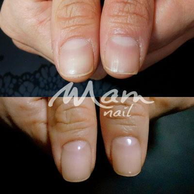 富士市ネイルサロン深爪矯正専門MamNail,深爪治したい,深爪静岡,深爪富士市,深爪治す方法