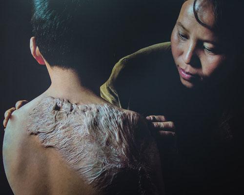 Eine Mutter pflegt die Narben ihres Sohnes, der von einer Bombe verletzt wurde.