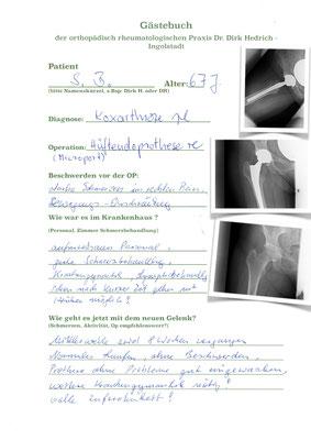 Hüftgelenksarthrose mit zementfreie Hüftprothese der Fa. Microport Schaft Profemur, Pfanne Protocyl L , Inlay Polyethylen