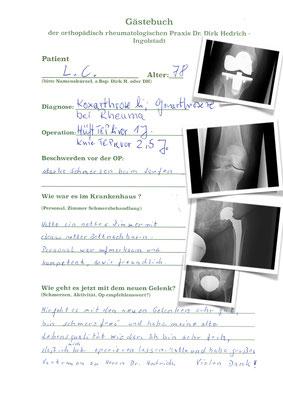 Rheumapatientin versorgt mit Hüftprothese Allofitpfanne und Avenirschaft ( Fa. Zimmer), Innex Knie Prothese ( Fa. Zimmer)