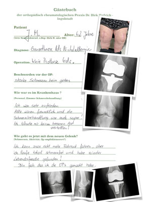 Kniegelenksverschleiß bds. mit Nickelallergie - im oberen Bild hypoallergenes Imlantat Fa Braun e Motion Titannitrit; unten NexGen Fa. Zimmer versorgt