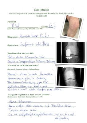 Herr R.W. einseitige Gonarthrose mit Schlittenprothese Conformis i UNI - Individualprothese versorgt