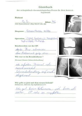 Realativ junge Frau - mehrfach voroperiert. Individual angefertigte Prothese i Uni Conformis