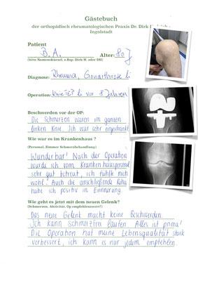 Rheumapatientin mit vielen Gelenkproblemen - Knie wurde mit Innex Knieprothese der Fa Zimmer versorgt