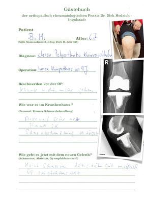 Rheumapatientin mit Osteoporose - Einzementierung der Prothese Innex Fa. Zimmer siehe auch den Befall der Finger