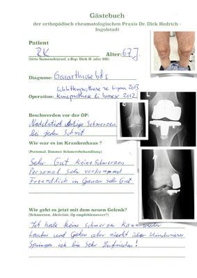 Beidseitige Arthrose in den Knien. Rechts nur innenseitig - deshalb unikondylärer Schlitten ( de Puy Sigma) links schwere Arthrose - Innex Oberflächenersatz Innex Fa. Zimmer