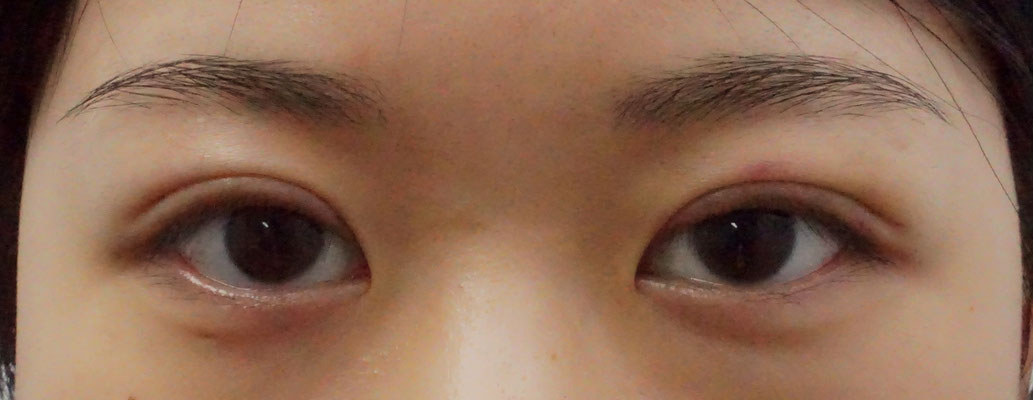 Early week 1 post operative photo of Asian female with non-incisional double eylid Asian blepharoplasty surgery