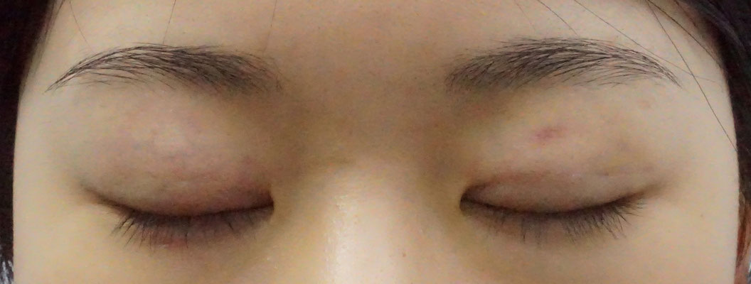 Early week 1 post operative photo of Asian female with non-incisional double eylid Asian blepharoplasty surgery with eyes closed showing no scarring