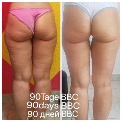 Minimierung und Konturing der Beine, Po - Produkt BYE BYE CELLULITE CREME