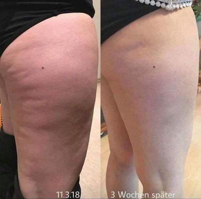 Minimierung der Cellulite - Produkt BYE BYE CELLULITE CREME